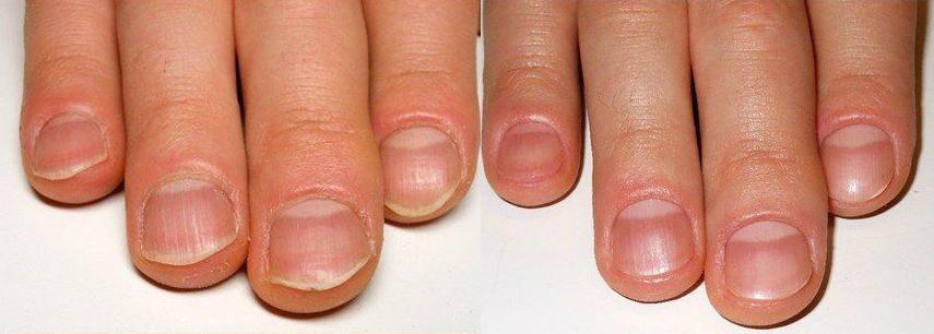 Симптомы и фото грибка ногтей на руках: как он 60